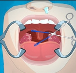 Game Operate Now: Tonsil Surgery