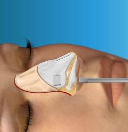 Virtual Closed Rhinoplasty